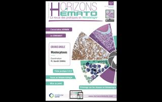 Horizons Hématologie - Vol. 8 - n°2 Juin 2018 : Mastocytoses