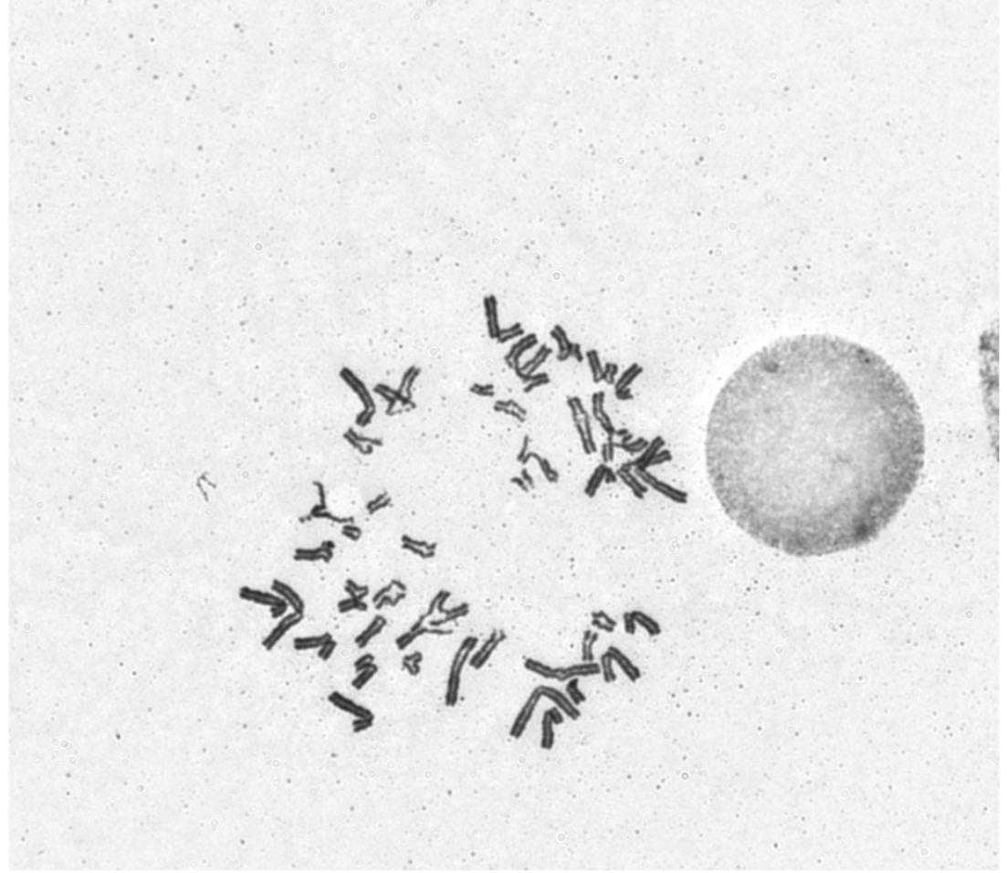 FANCONI TEST CASSURES CHROMOSOMESIQUE 2
